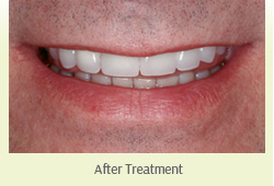 Dental Crown Farmington Hills - After-Treatment