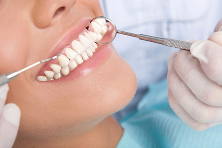 Dental Bleaching from Farmington Hills Dentist