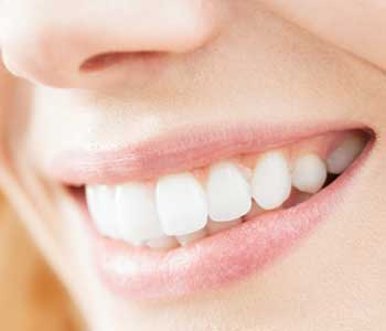 Expain the appearance of teeth without the extensive treatment from Dr. Bernstein Richard in Farmington Hills
