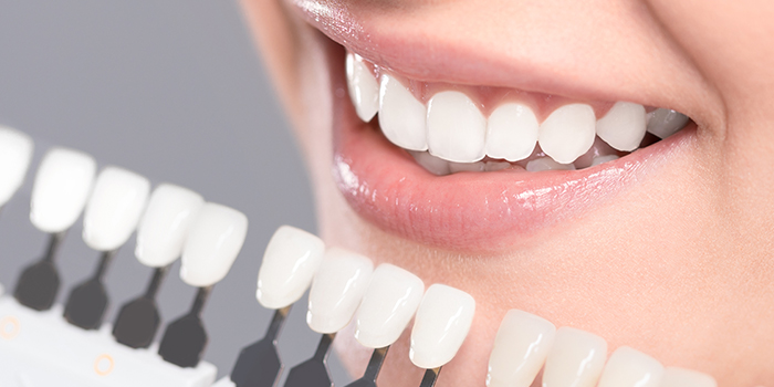Costs and recovery with teeth veneers from Dr. Bernstein Richard in Farmington Hills