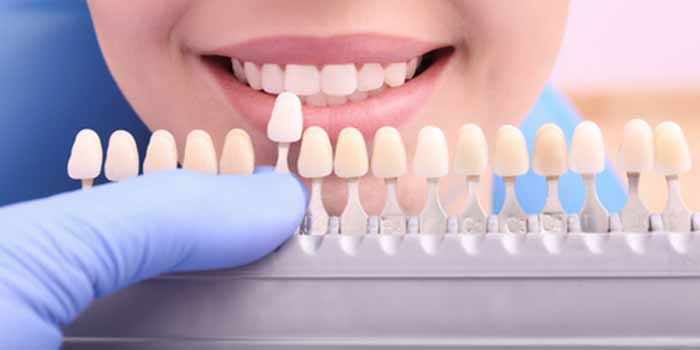 At the office of Richard S. Bernstein D.D.S. in Farmington Hills, they recommend tooth colored fillings to their patients