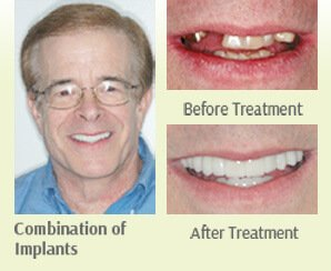 Combination of Implant Before and After