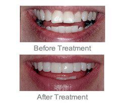 Cosmetic Dentist Farmington Hills - Combination of Implants 02
