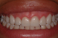 Dr Richard S. Bernstein D.D.S Image Of Teeth Whitening Before
