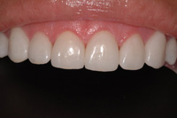 Dr Richard S. Bernstein D.D.S Image Of Teeth Whitening After