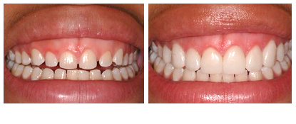 Dr Richard S. Bernstein D.D.S Image Of Porcelain Veneers Before