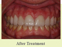 Smile Makeover Farmington Hills - After Image