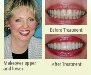 Makeover upper and lower  Before after