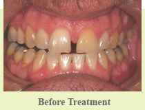 Smile Makeover Farmington Hills – Smile Design