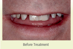 Dental Crown Farmington Hills - Before-Treatment