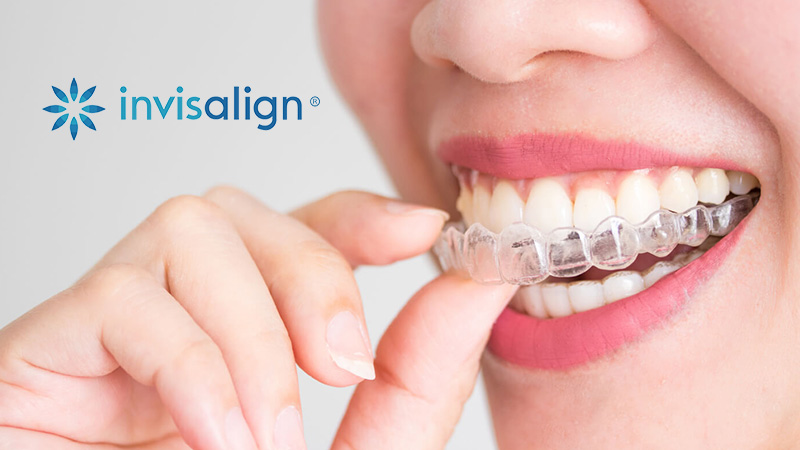 Invisalign at Richard S. Bernstein D.D.S, Farmington Hills