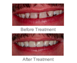 Cosmetic Dentist Farmington Hills - Makeover Uppper and Lower