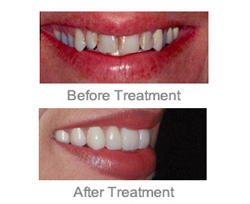 Cosmetic Dentist Farmington Hills - Makeover Upper and Lower