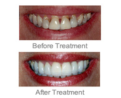 Cosmetic Dentist Farmington Hills - Combination of Implants