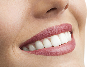 Farmington Hills Smile Makeover - Smile
