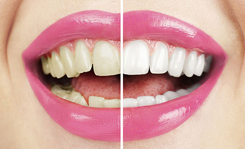 Healthy Woman White Teeth, Teeth Whitening Farmington